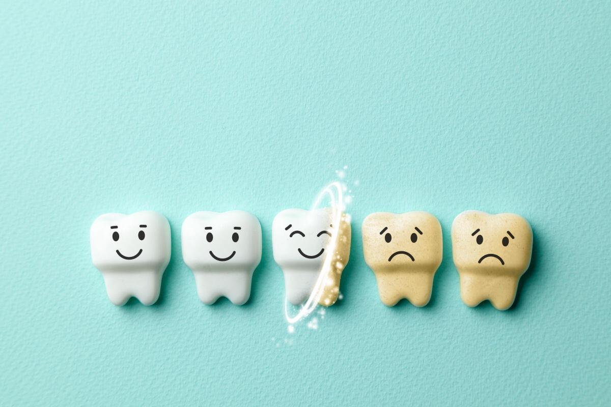 Perché i denti tendono ad ingiallire