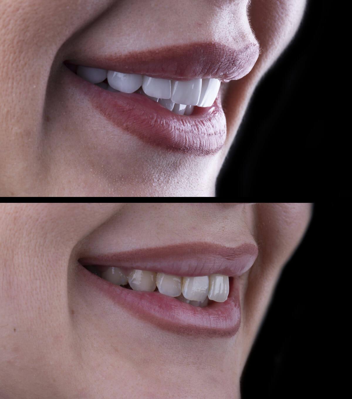 Applicare le veneers per correggere i denti storti