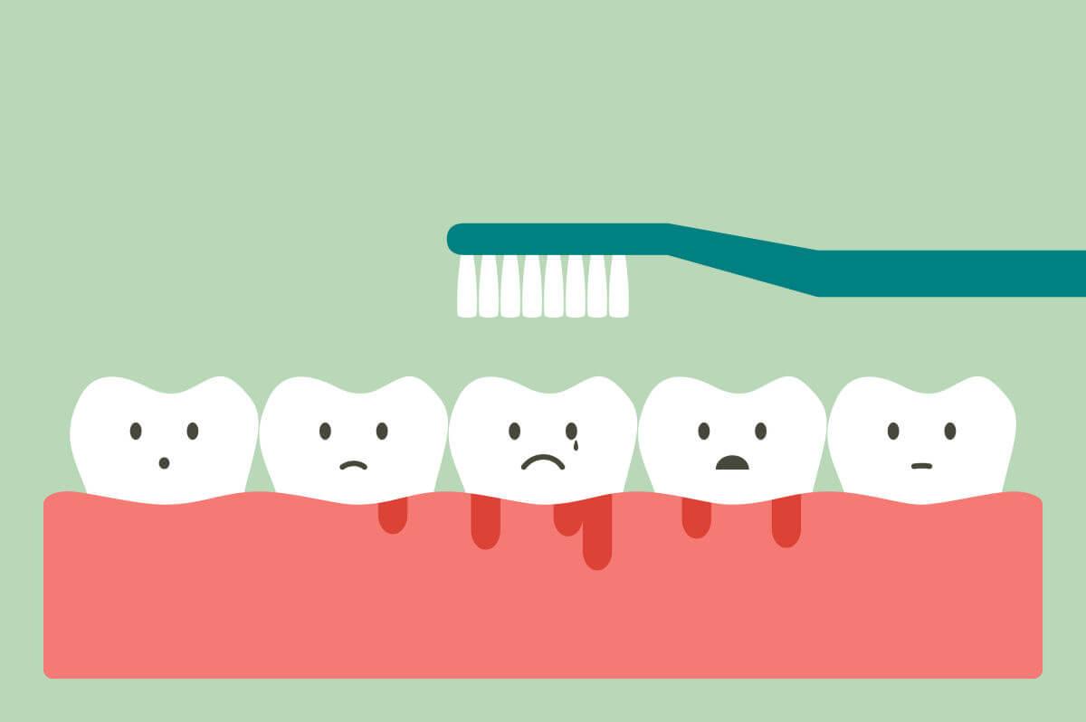 Quando le gengive sanguinano non bisogna spazzolare i denti
