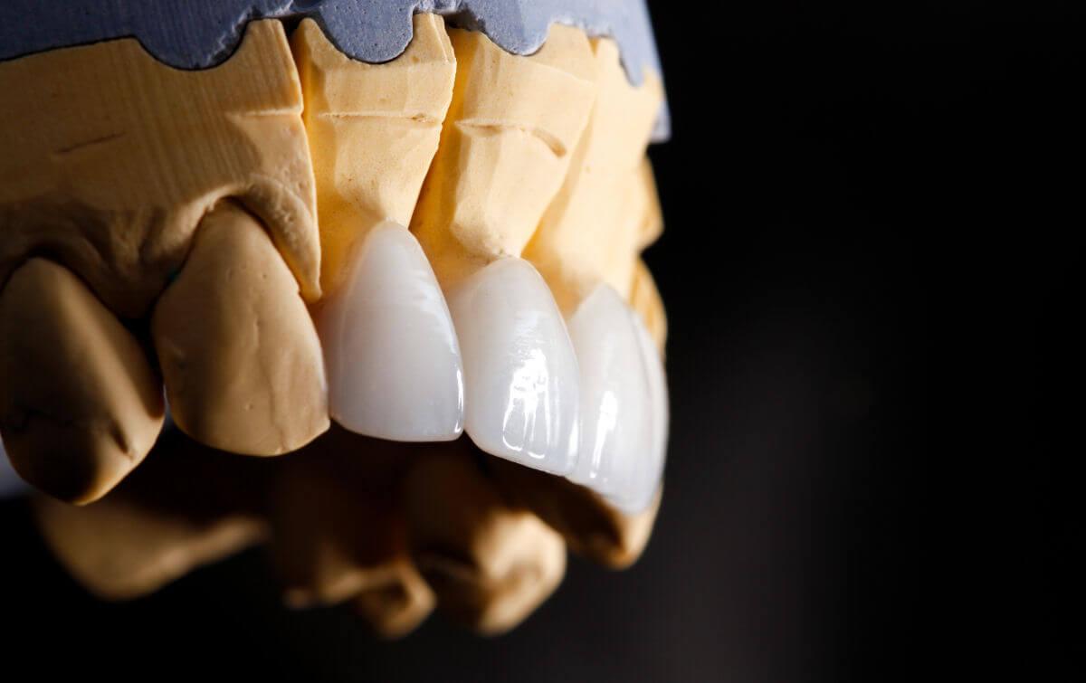 Svantaggi e vantaggi delle faccette dentali